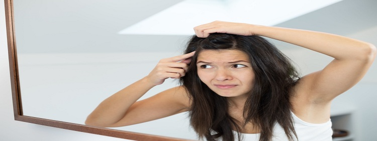 HOW TO GET RID OF HAIR DANDRUFF